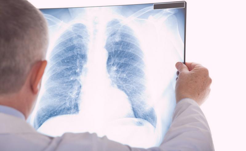 causas e prognostico do câncer de pulmão